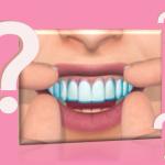 Gyakori kérdések a fogfehérítéssel kapcsolatban